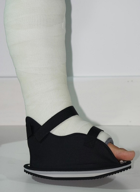 Cast Heels Amp Shoes Rubber Walking Cast Shoe Heel